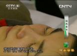 国医奇术 - 治疗眼劳干眼症