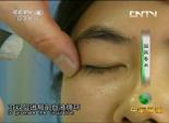 国医奇术 - 治疗眼劳干眼症 4